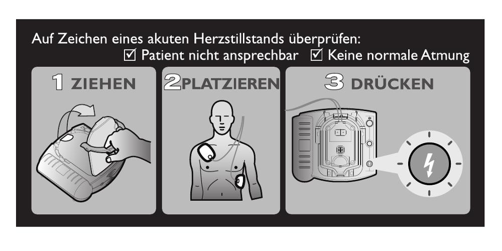 Die Bedienung eines Defibrillators ist ohne Anleitung sofort verständlich